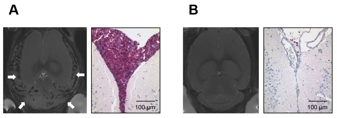 Central nervous system (CNS) leukemia modeled in the NOD/SCID/huALL system. Figure A: Massive meningeal infiltration with human ALL cells in NMRI scan analysis (left panel, white arrows indicate enlarged meninges) and immunohistochemistry (right panel, purple: human B-cell precursor cells, anti-human CD10 staining; and figure B: absence of meningeal manifestation in a CNS negative ALL sample.